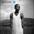 XI Premio internacional de fotografía humanitaria Luís Valtueña